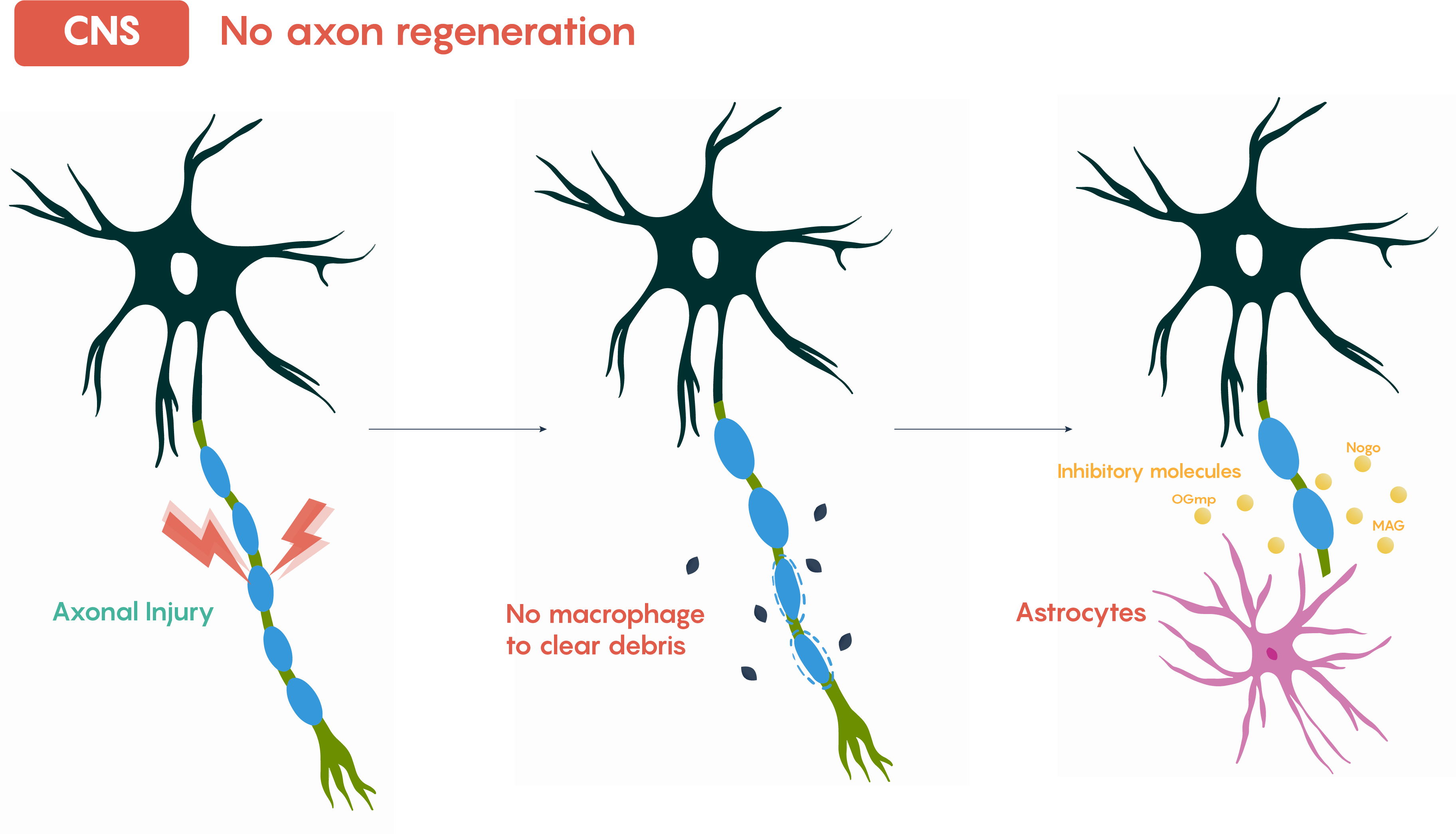Image shows the lack of axonal regeneration in the CNS.