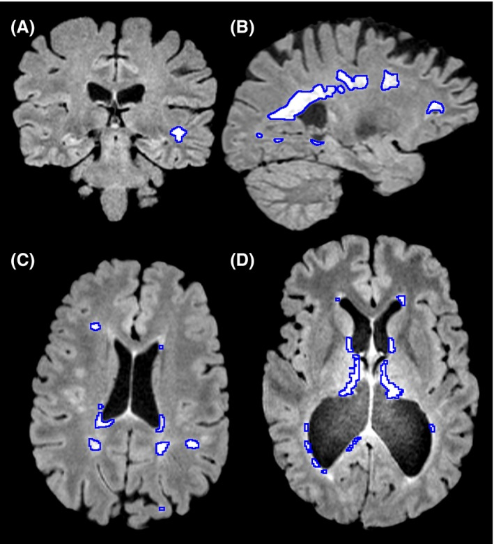 MRI images showing white hyperintensities in different areas of the brain of an individual experiencing symptoms of multiple sclerosis. (A) A coronal slice showing a lesion in peripheral white matter. (B) A sagittal slice showing large periventricular lesions. (C) An axial slice showing both periventricular and peripheral white matter lesions. (D) A case where severe atrophy caused midline false positives to not be removed, as they were further from midline than expected.