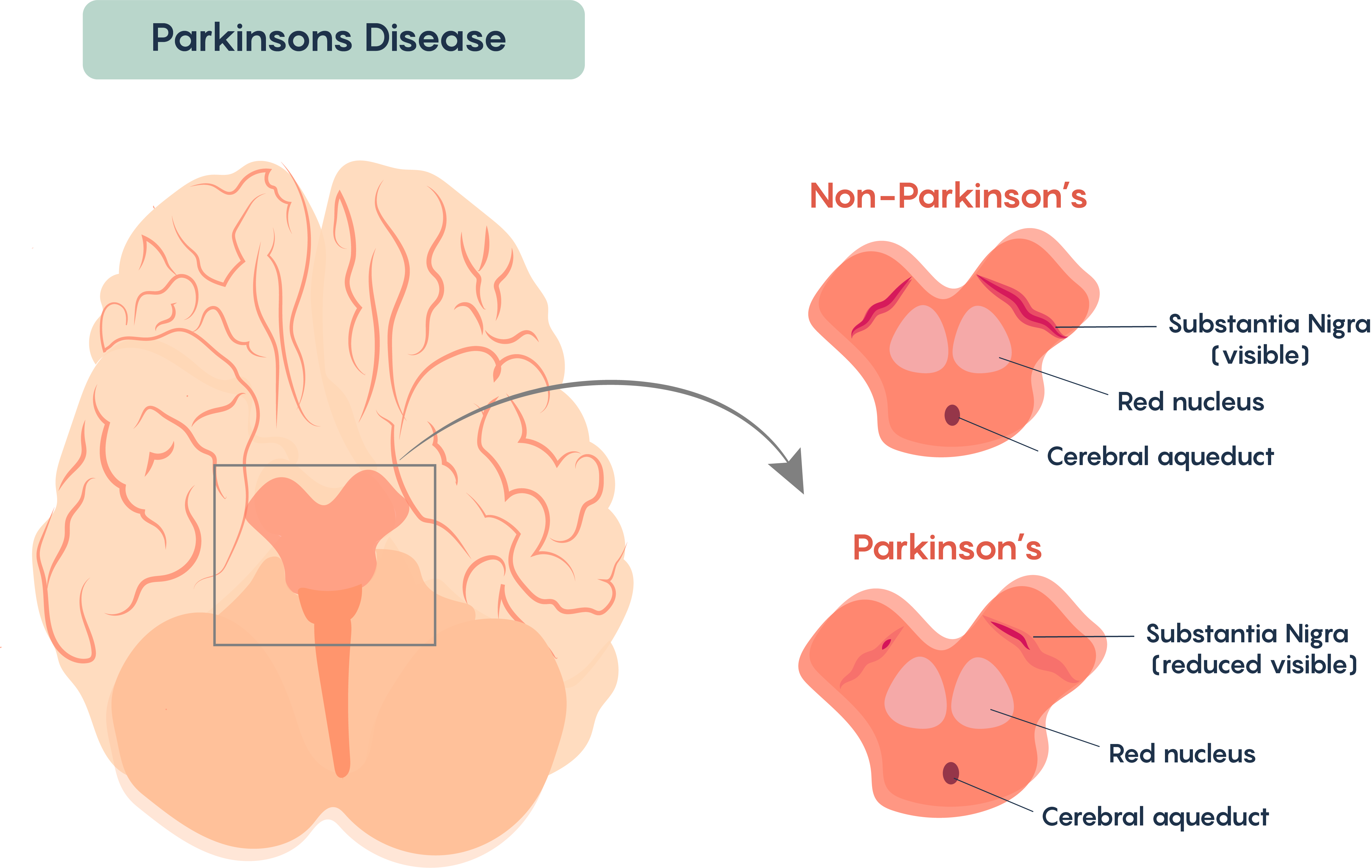 Loss of the pigmented dopaminergic neurons within the Substantia Nigra of individuals with Parkinson's Disease.